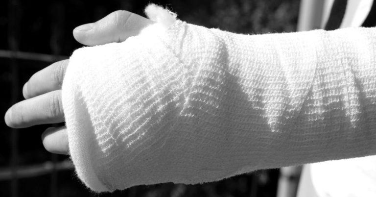 骨折 包帯 怪我 火傷