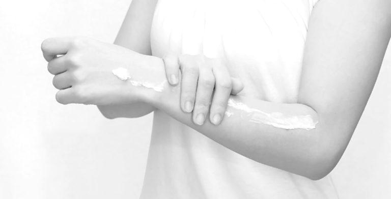女性 腕 乾燥