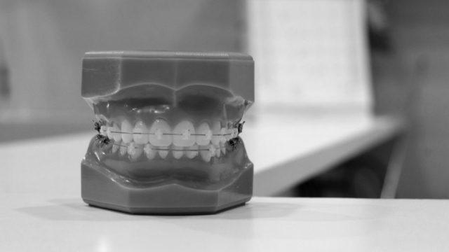 入れ歯 噛む 歯ぎしり