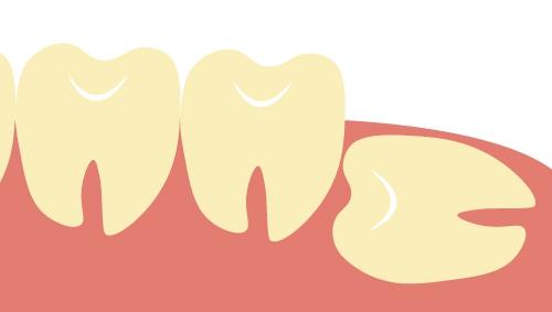 親知らず 歯